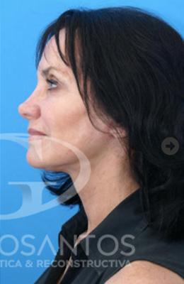 Cirugias de cara